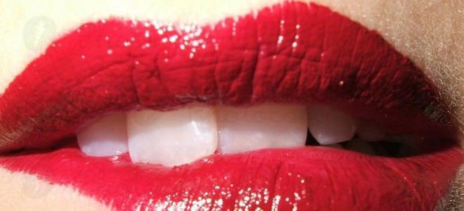 Kiss Kiss Bussi Bussi